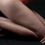 Cellulite treatment to get rid of unwanted fatty tissue