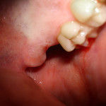 Wisdom teeth removal: Important things you should know about