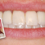 Dental Problems Can Be Solved With Dental Implants