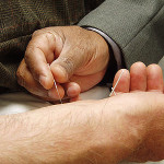 Various Health Benefits Provided By Acupuncture Treatment