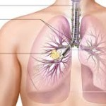 The Stages and Symptoms of Lung Cancer