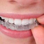 Braces and Invisalign: How Much Do They Cost