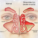 Knowing about Chronic Sinusitis