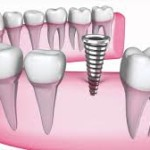 Dental Implants Explained by OKC Dentist Dr. Damon R. Johnson, DDS