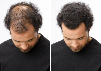 men hair growth