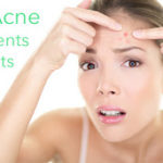 How Can I Treat Adult Acne?