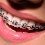 Consulting an Orthodontic Specialist – What you need to know?